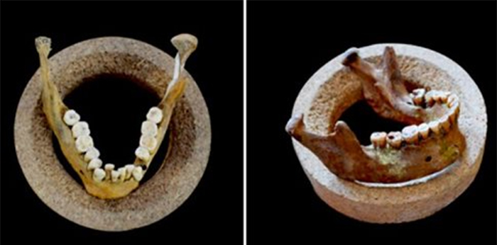 Πότε τα ανθρώπινα δόντια άρχισαν να στραβώνουν