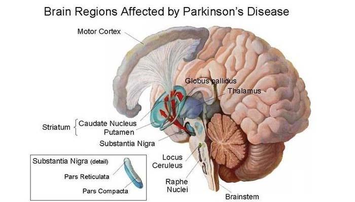 Νέα στοιχεία για τον τοξικό μηχανισμό που οδηγεί στη νόσο Πάρκινσον