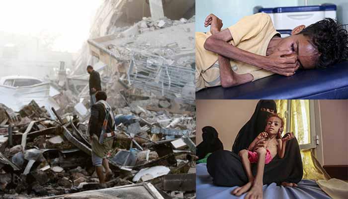 Υεμένη: Η επίγεια κόλαση για 1,8 εκατ. παιδιά κάτω των 5 ετών που βρίσκονται σε κατάσταση «οξέος υποσιτισμού»