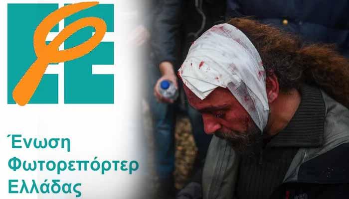 Ένωση Φωτορεπόρτερ: Προσχεδιασμένη η επίθεση σε βάρος πέντε συναδέλφων μας